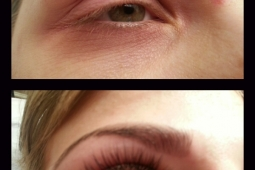 Semi-Permanent Lash Extensions